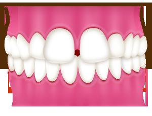 すきっ歯とは?